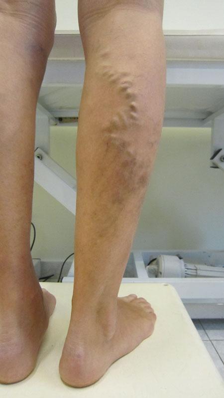 Cura di gambe allatto di prevenzione di varicosity